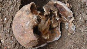 The skull of Julia Martha Thomas, found in Richmond last October