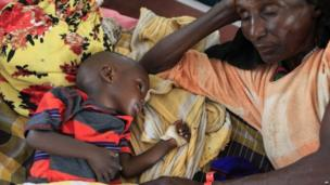 Little boy being treated for severe malnutrition