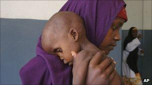 A malnourished child from southern Somalia is carried by his mother at a hospital in Mogadishu