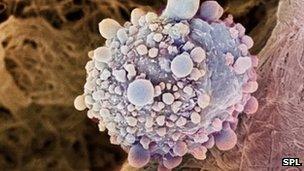 Pancreatic tumour