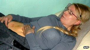 Yulia Tymoshenko showing her bruised abdomen, (file pic 25 March 2012)