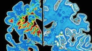 Healthy brain and Alzheimer's brain