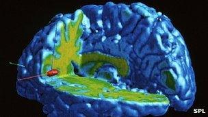 A brain responding to pain