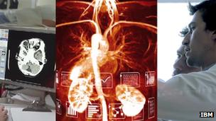 Watson cancer video screenshot