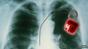 X-ray of pacemaker