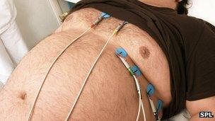 Obese man having heart exam