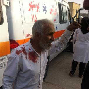 A man injured in the earthquake near Bushehr