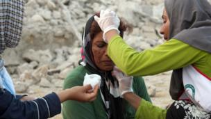 An Iranian woman receives medical treatment from aid workers in the town of Shonbeh