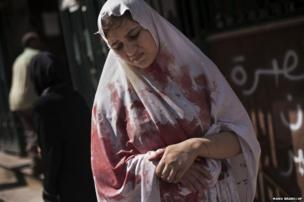 A wounded woman still in shock leaves Dar El Shifa hospital in Aleppo, Syria, 20 September 2012