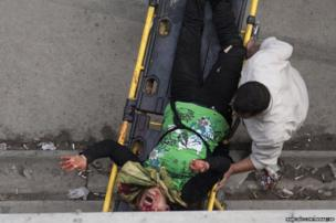 A Syrian man wheels a severely injured woman to a hospital for treatment after an artillery shell landed near a bakery in Aleppo, Syria, 23 October 2012