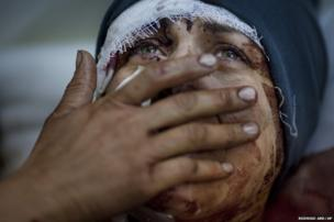A woman named Aida cries as she recovers from severe injuries after the Syrian army shelled her house in Idlib, northern Syria, 10 March 2012. Aida's husband and two children were killed in the attack