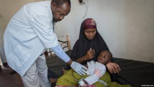 Medic Ibrahim Mahmoud attends to a malnourished child held by his mother in a health centre in a camp for displaced people in Mogadishu, Somalia