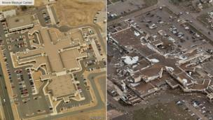 Before and after image of Moore Medical Center, Oklahoma City