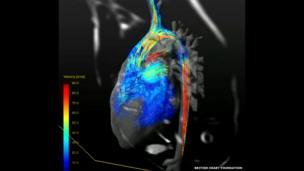 Still from a video of blood pumping through a criss-cross heart.
