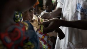 A child being screened for malnutrition at the Merlin-supported hospital in Batalimo refugee camp, Central African Republic