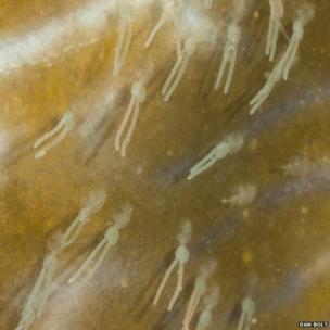 Marine parasites on a John Dory