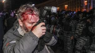 Wounded Reuters photographer Gleb Garanich, who was injured by riot police, takes pictures.