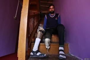 Irshad Ahmad displays his disfigured limb, at his house in Uri. Mr Ahmed was wounded in cross-border shelling on 1 November 2001.