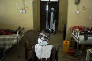 A patient being treated for multiple gunshot wounds to the face, chest and throat sits in a wheelchair in the Malakal teaching hospital, South Sudan