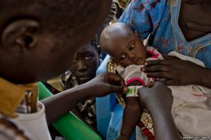 Matiop's six-month-old niece, Nyalet Deng, is checked for malnutrition