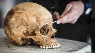 A skull is measured