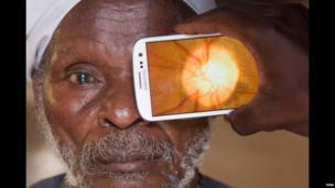 Retinal imaging by Peek