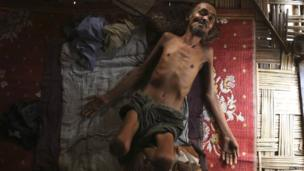 Muhammad Ali, a 54-year-old Rohingya man suffering from tuberculosis for over a year, lies inside his room at the Thet Kae Pyin camp for internally displaced people in Sittwe, Rakhine state (April 2014)