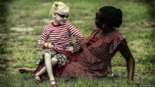 A woman plays with her albino daughter on the grass in Dar es Salaam, Tanzania - Friday 2 May 2014