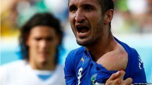 Italy's Giorgio Chiellini shows his shoulder