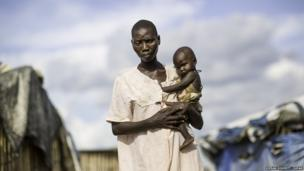 A young woman and her baby who was sick with cholera in Juba, South Sudan