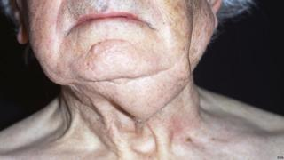 elderly man with neck tumour