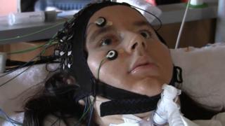 Bedenindeki hiçbir kası hareket ettiremeyen bir hasta