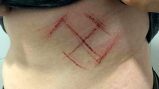 Foto publicada nas redes sociais de jovem que diz ter sido agredida