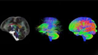 Escáneres cerebrales de un bebé