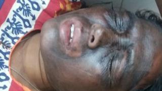 Soni Sori in hospital
