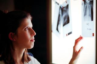 Nurse Lisa Roberts Examines X-Rays on a light-box in the special care baby unit at the University Hospital Of Wales, Cardiff.