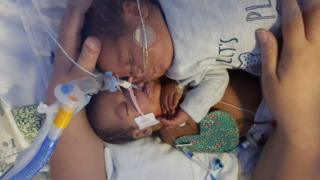 Premature baby's cuddle 'saved twin brother's life'