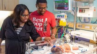 US baby born on 9/11 by 9:11pm get weight of 9 pounds 11 ounces