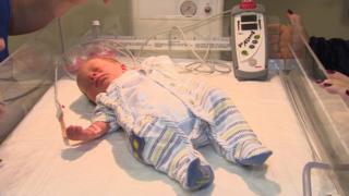 congenital birth defects