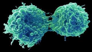 Un virus du rhume a infecté et tué des cellules cancéreuses de la vessie dans l'étude.