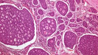 سرطان المبيض