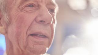 التصوير الدقيق لدماغ مصابي الزهايمر يساهم في التوصل للعلاج
