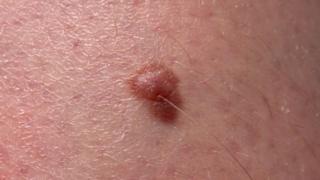 A melanoma tumour
