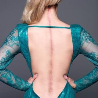 วิคตอเรียสวมชุดราตรีเปิดแผ่นหลัง เผยให้เห็นแผลผ่าตัดที่ยาวตั้งแต่ท้ายทอยไปจนถึงก้นกบ