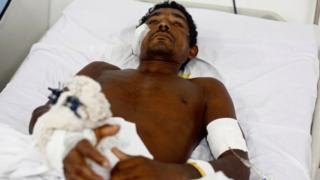 Jose Ribamar from Brazil's indigenous Gamela tribe at a hospital after he was injured in a dispute over land in in Sao Luis, Maranhao state, Brazil, May 2, 2017