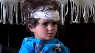 Двухлетняя Хадиджа Аль-Хамдан.