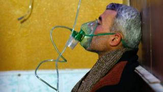 A Syrian man wears an oxygen mask at a make-shift hospital following a reported gas attack on the rebel-held besieged town of Douma in the eastern Ghouta region on the outskirts of the capital Damascus on January 22, 2018.