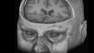 Inside Owain Clarke's brain