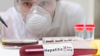lab test of hepatitis blood