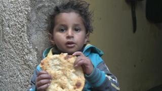 بحران غذا در یمن سازمان ملل می گوید پول و دسترسی نباشد مردم میمیرند